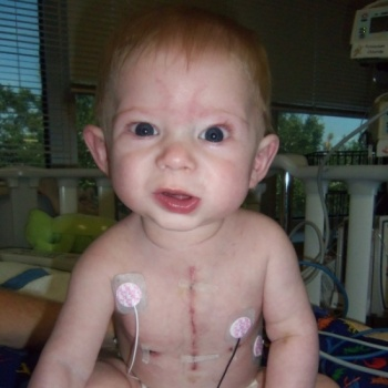 Conquering Heart Defects