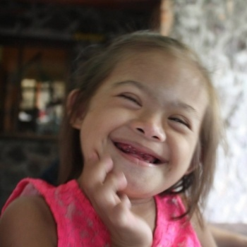 Help Sponsor Therapy for a Year for a Child with Down Syndrome