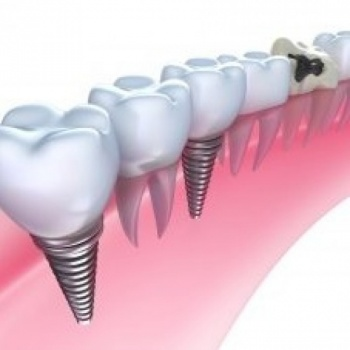 Dental Implants Provo