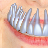 model-based-teeth-reconstruction-image