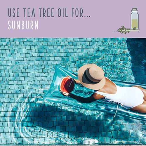 tea tree oil for sunburn