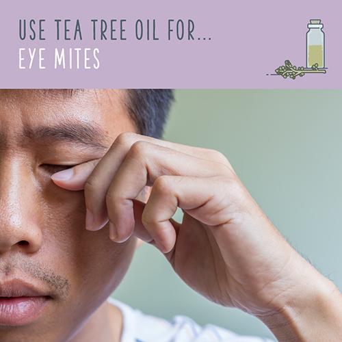 tea tree oil for eye mites