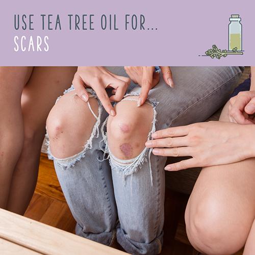 tea tree oil for scars