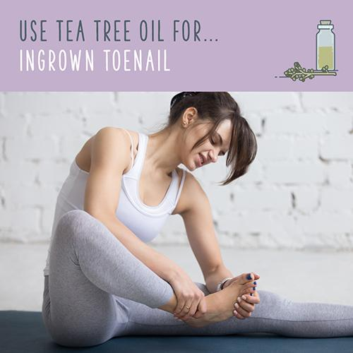 tea tree uses for ingrown toenail