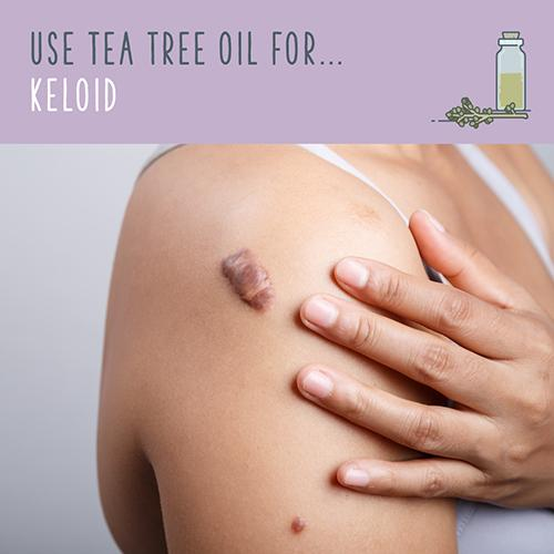 tea tree oil for keloid