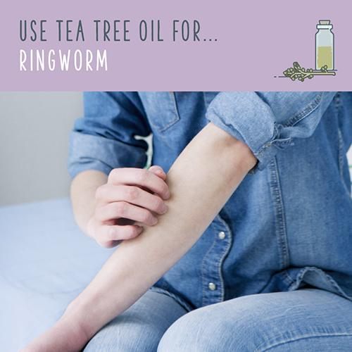 tea tree oil for ringworm
