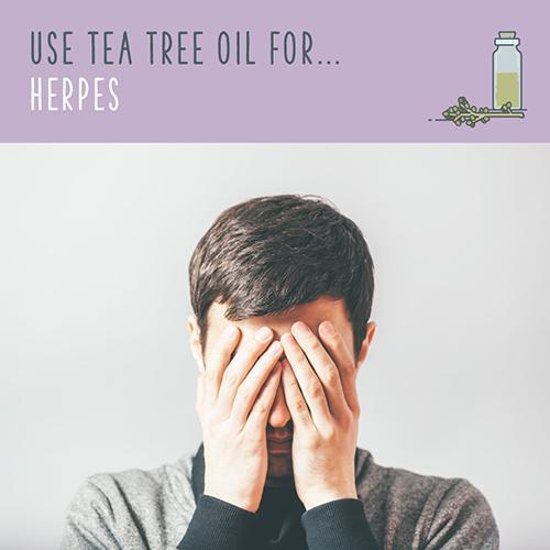 tea tree oil for herpes