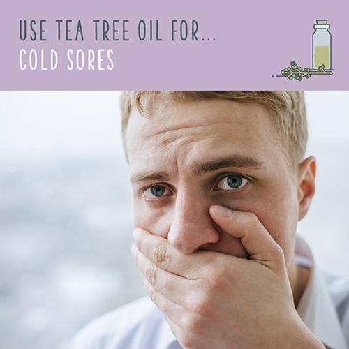 tea tree uses for cold sore