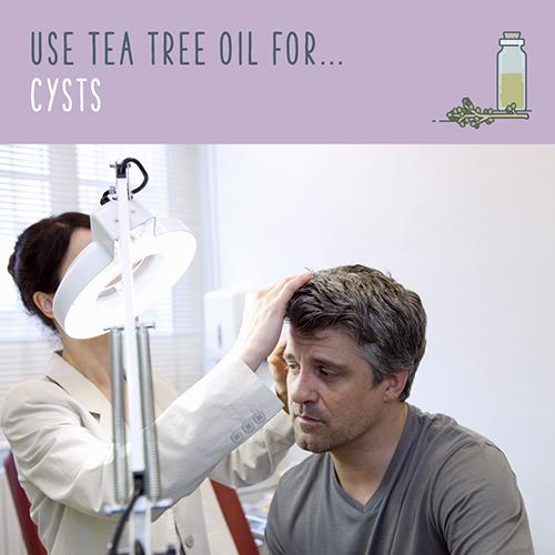 tea tree oil for cysts