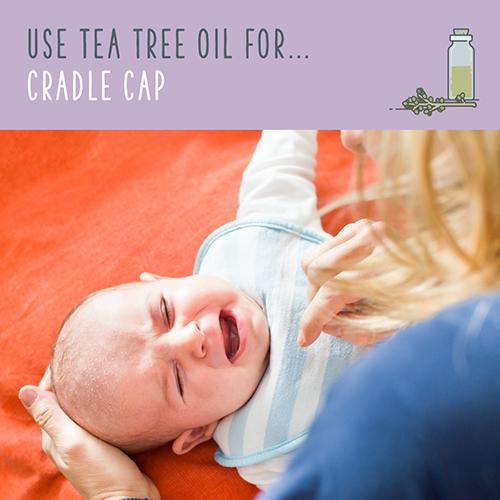 tea tree oil for cradle cap