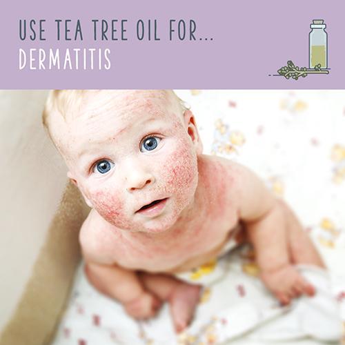 tea tree oil for dermatitis
