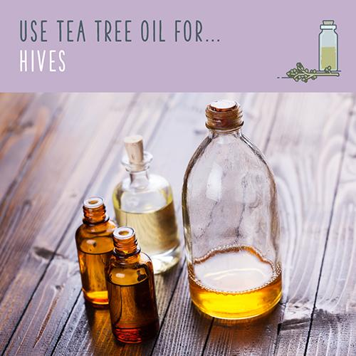 tea tree uses for hives