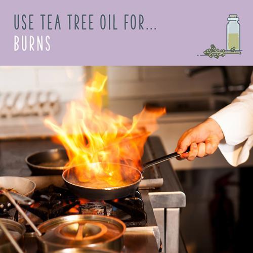 tea tree oil for burns