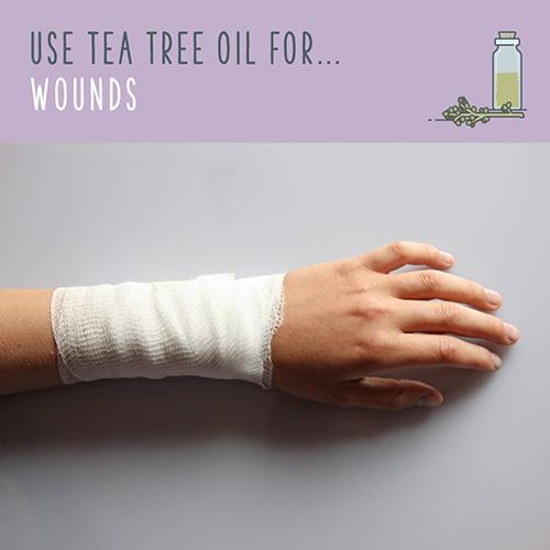 tea tree oil for wounds