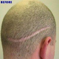 hair transplant top 5