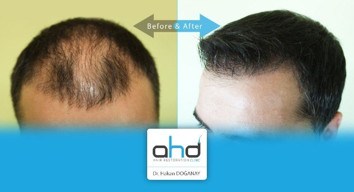 ahd hair transplant reviews antalya turkey