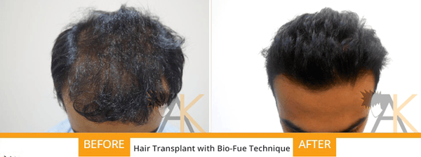 bio fue hair transplant ak clinics india