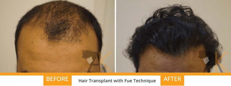 FUE hair transplant AK Clinics India