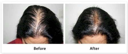 mesotherapy women hair loss treatment