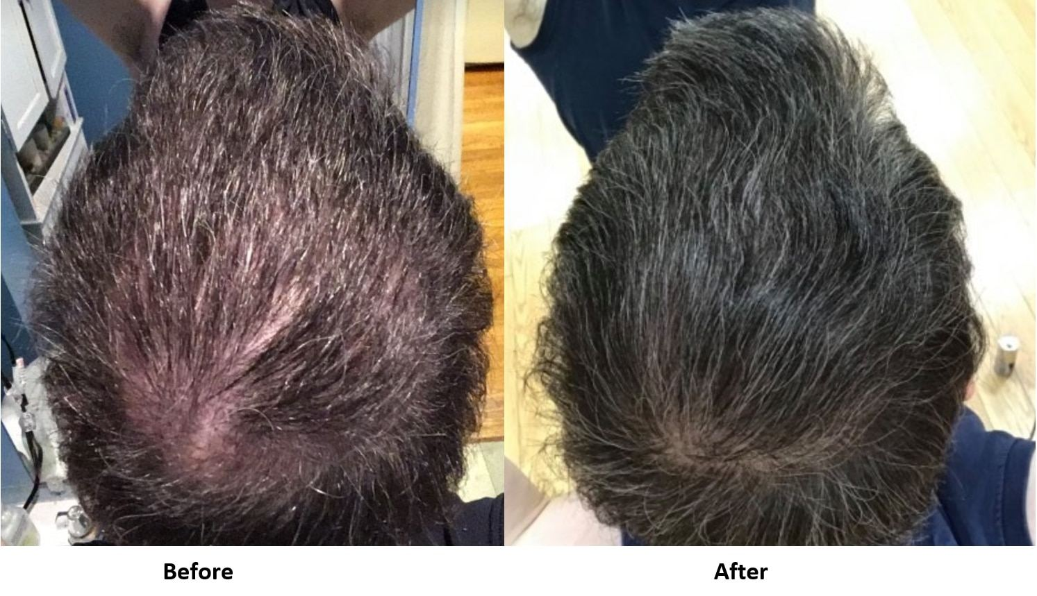exosomes hair regrowth results