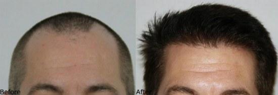Las Vegas Free Hair Transplant Consultation
