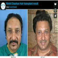 rohit chauhan hair transplant india