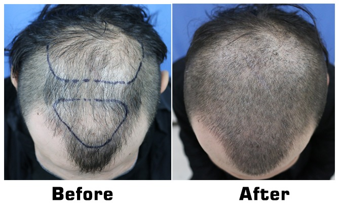 Scalp Micropigmentation to create Buzz Cut look