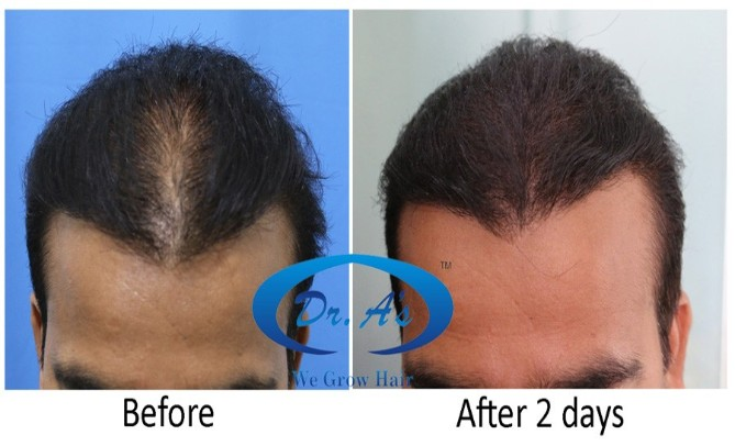 Scalp Micropigmentation to create illusion of Density