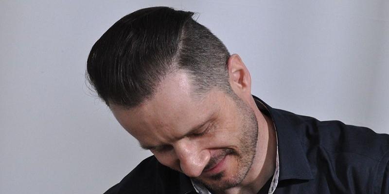 dr cole hair transplant result