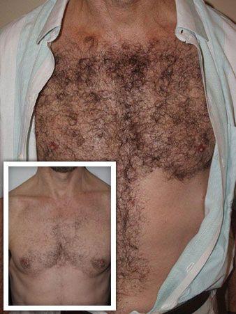 body hair transplant new york dr epstein