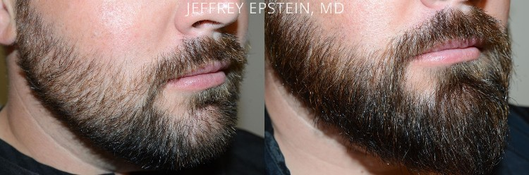 facial hair restoration new york miami