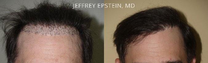 hair transplant repair new york