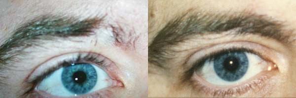eyebrow transplant ottawa
