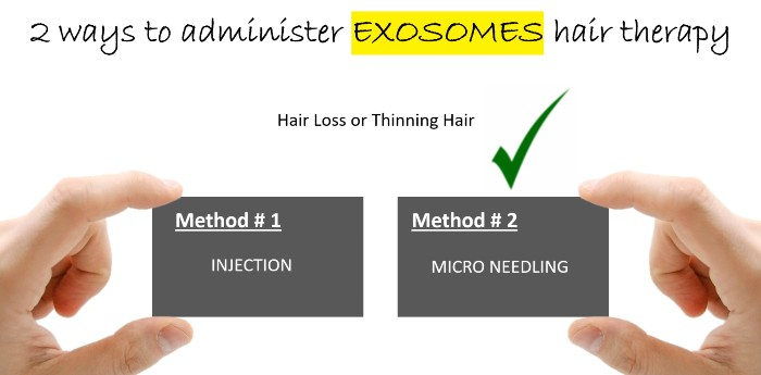 exosomes stem cell hair regrowth