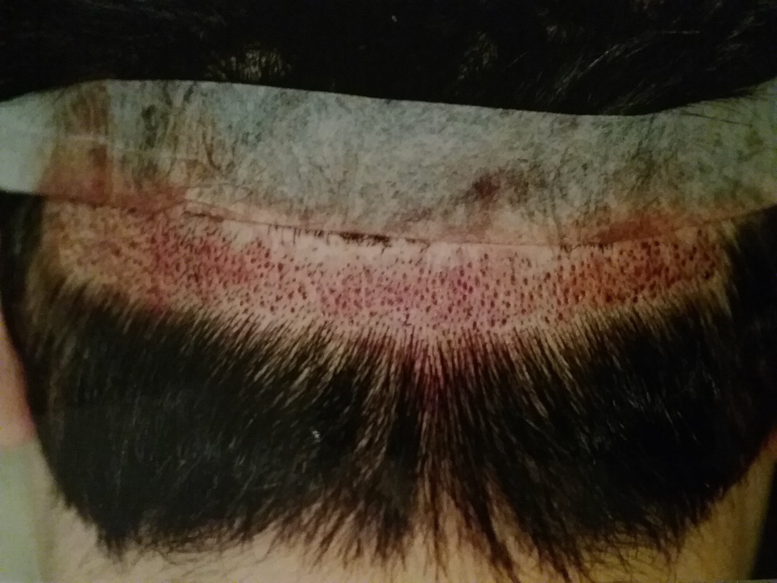 haircut before hair transplant