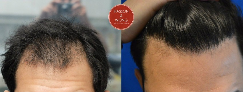 hasson and wong hair transplant porn