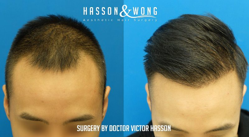 best time to get hair transplant