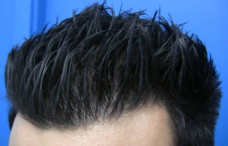 hasson and wong fue hair transplant