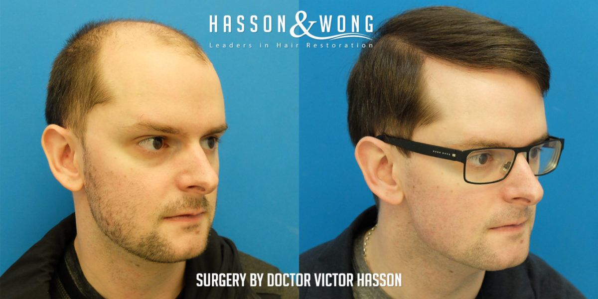 Hasson & Wong Hair Transplant
