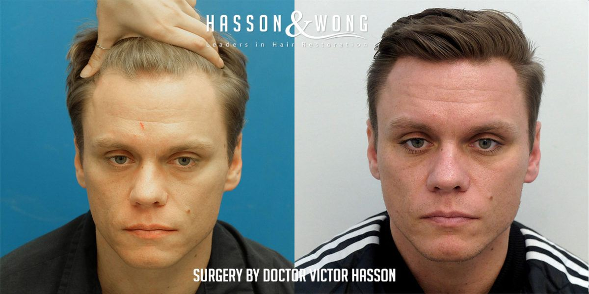 image courtesy of Hasson & Wong Hair Transplant Clinic