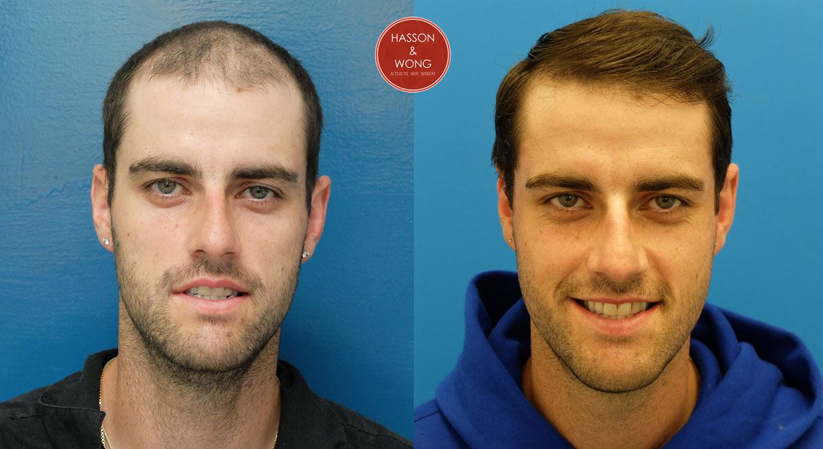 hide hair transplant from friends families