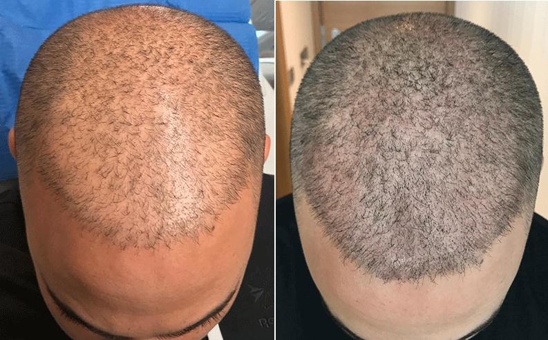 scalp micropigmentation scalp trichopigmentation