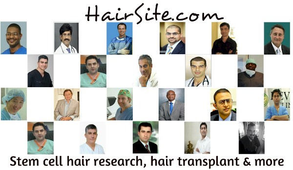 Gravity Causes Male Pattern Baldness Hair Loss