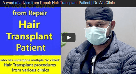 Hair Transplant Graft Count Accuracy Problem