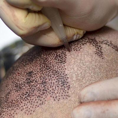 scalp micropigmentation tattoo india