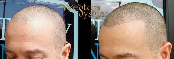 alopecia areata treatment using scalp micropigmentation