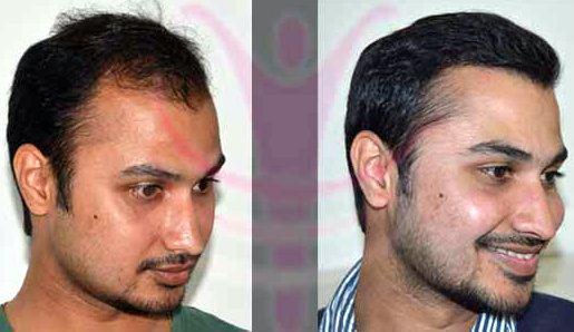 Hair Transplant Cost Jaipur