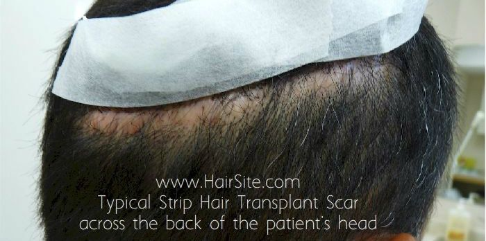 hair transplant donor scar