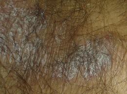 Scalp Inflammation Hair Loss