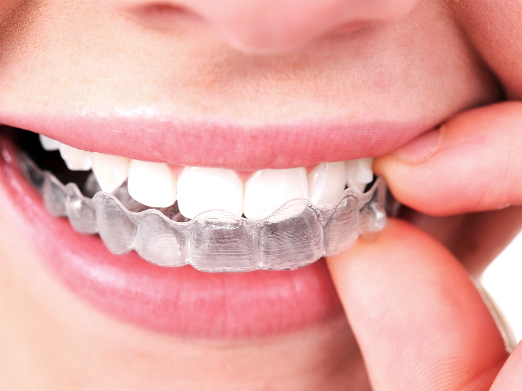 invisalign deals denver